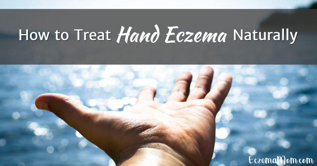 How to Treat Hand Eczema Naturally