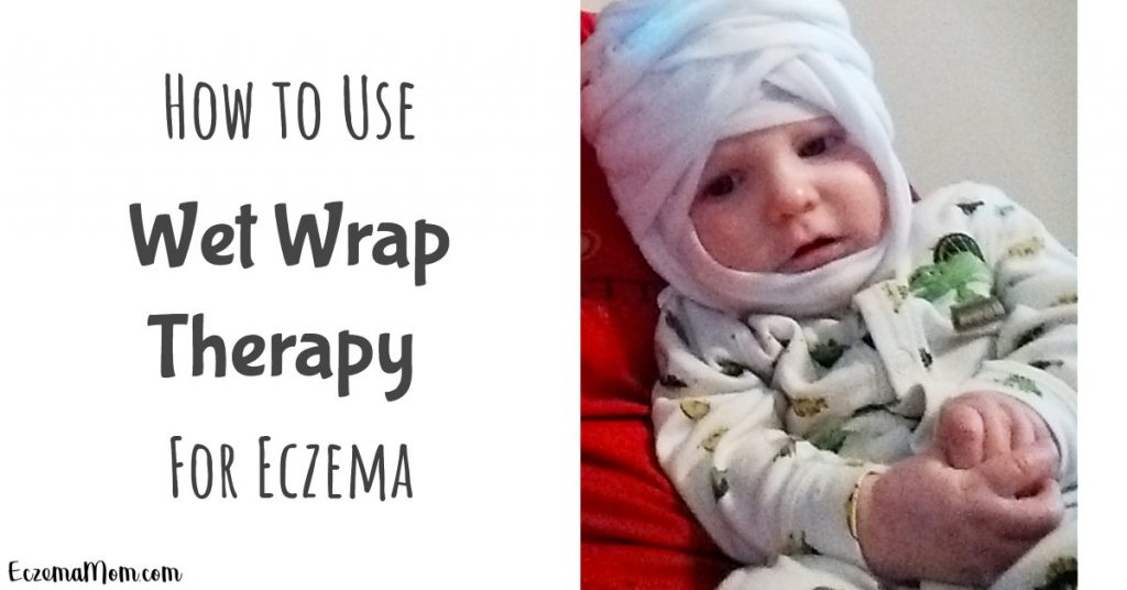 How to Use Wet Wrap Therapy for Eczema