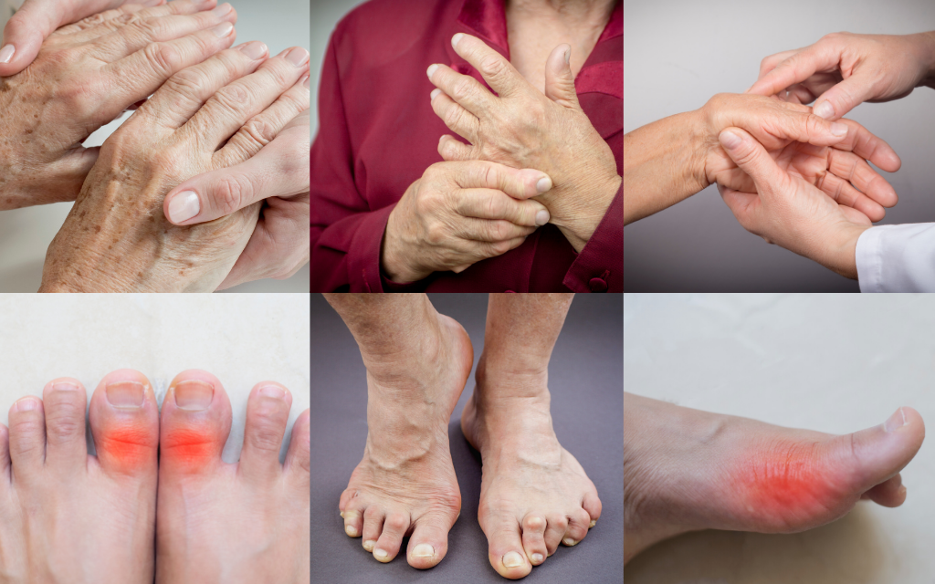 Rheumatoid Arthritis | ilovenatural.store