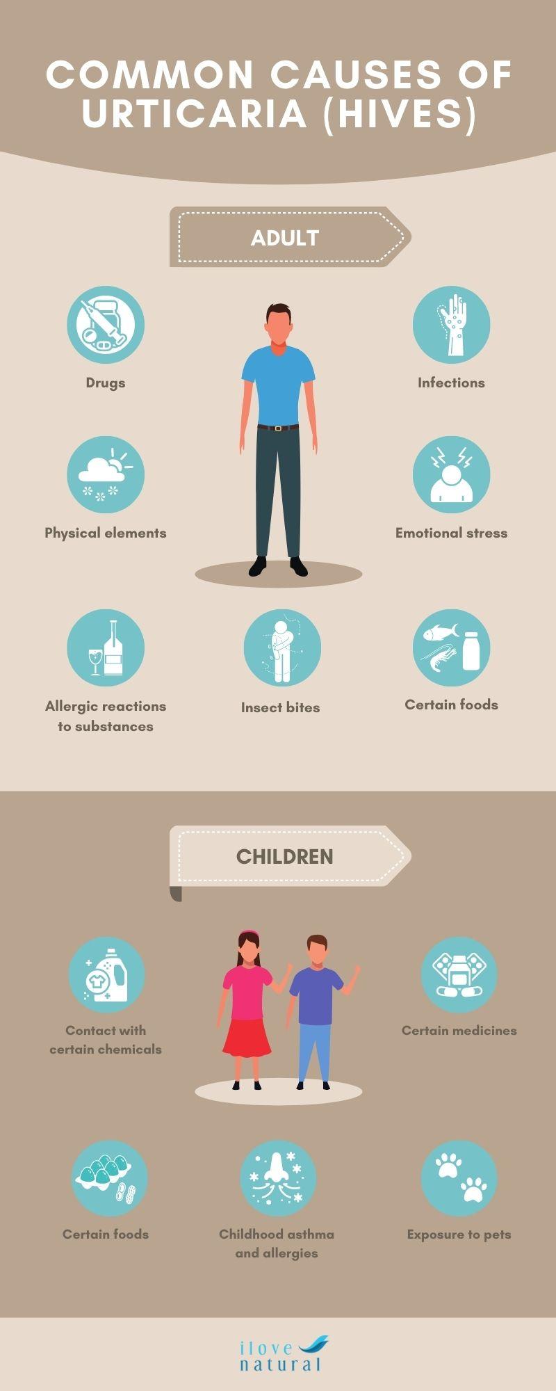 Common Causes of Urticaria (Hives) |ilovenatural.store
